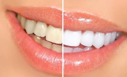 Эстетическая стоматология Железнодорожный