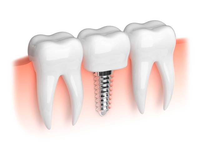 Имплантация зубов Железнодорожный